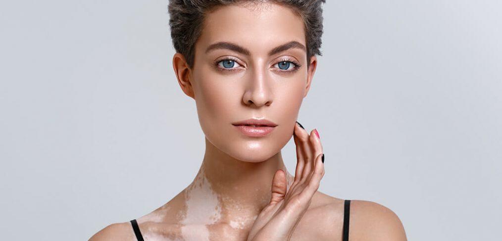Portrait of woman with vitiligo
