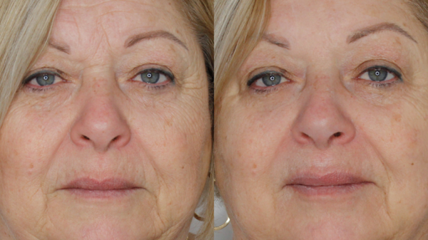 Closeup of woman before and after facial treatment